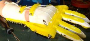 Robohand: una protesi per la mano stampata in 3D