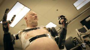 Les Baugh: l'uomo bionico