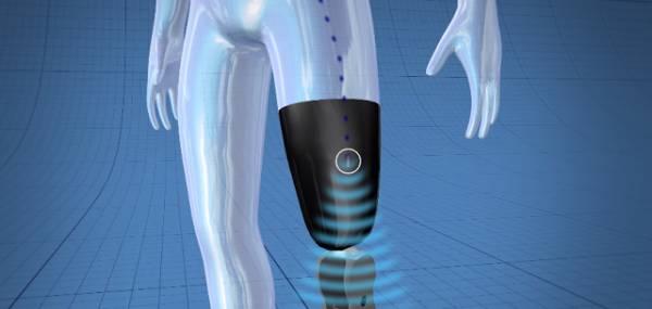 La gamba bionica di Össur