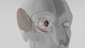 Un impianto in miniatura per regolare la pressione oculare