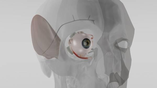 L'impianto per regolare la pressione oculare