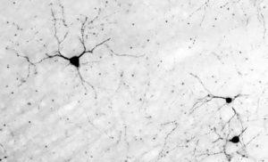 Trapianti neuronali per risanare le funzioni del cervello