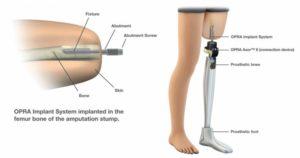 O.P.R.A.: una protesi collegata direttamente all'osso