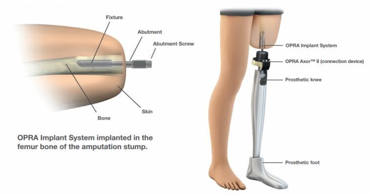 Illustrazione della protesi bionica O.P.R.A.