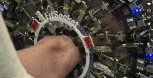 FitSocket: il dispositivo per creare protesi di nuova generazione