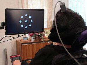 """Un impianto neurale permette a pazienti con SLA di """"scrivere"""" 6 parole al minuto"""