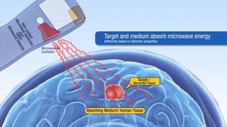 """Una tecnologia per """"ascoltare"""" i tumori"""
