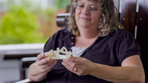 Theresa Flint con i suoi vasi sanguigni stampati in 3D